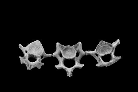 cancellous: Bones in a black background, closeup of photo Stock Photo