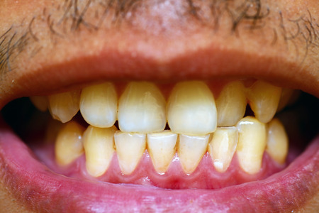 dirty teeth: patient before prophylactic treatment, dirty brown teeth