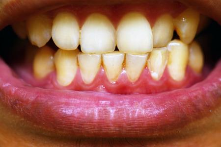 dientes sucios: paciente antes del tratamiento profil�ctico, dientes marrones sucios