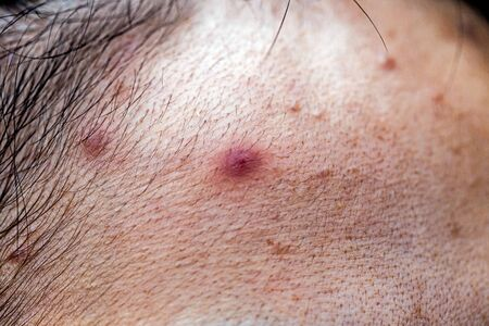 Woman 's problematic skin , acne scars ,oily skin and pore, dark spots and blackhead and whitehead on the face Stock Photo