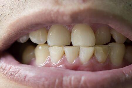 paziente prima del trattamento profilattico, denti marroni sporchi