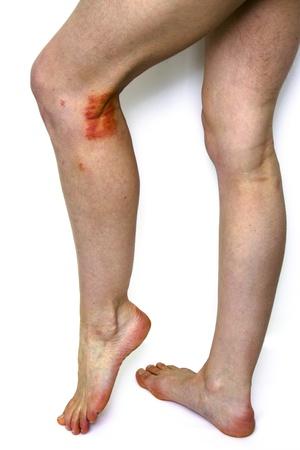 rash: Las piernas de una mujer joven que muestra el eczema