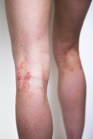 scratching: Psoriasis on a woman s leg