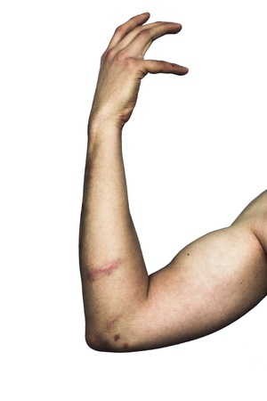 bruised: Bruised arm