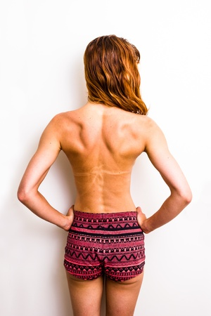 Rear view of woman with sunburned back and tanlines photo