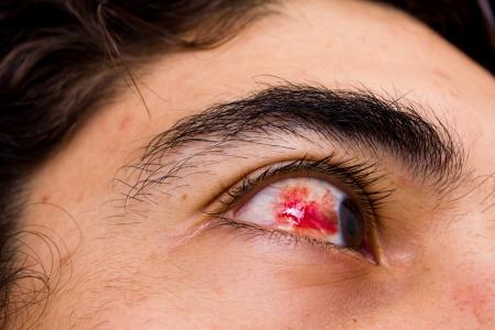 hemorrhage: emorragia sottocongiuntivale
