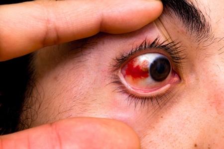 hemorragia: hemorragia subconjuntival
