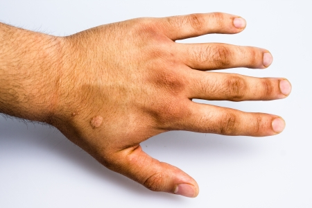 tortured: Hand with scar from cigarette burn torture Stock Photo
