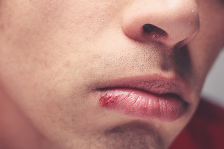 Young man with a cold sore on his lip Stock Photo