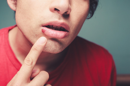 Young man is showing a cold sore on his lip Standard-Bild
