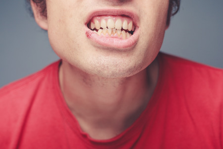 labialis: Young man with a cold sore on his lip and plaque on his teeth