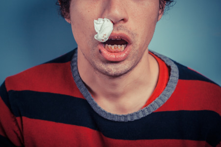 Young man with tissue in his nostril has nose bleed as well as cold sores on his lip photo