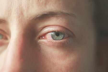 Close up on a woman's bloodshot crying eyes