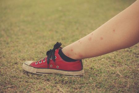 insecto: La pierna de una mujer joven cubierta de picaduras de mosquito