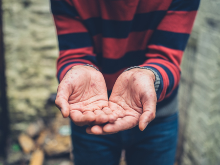 varicela: Close up on the hands of a young man with a rash on his hands begging outside Foto de archivo