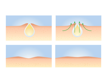 pus: Action principle Acne Skin