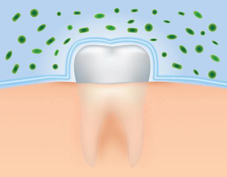 dientes sucios: Ilustraci�n de dientes para obtener protecci�n contra las bacterias.