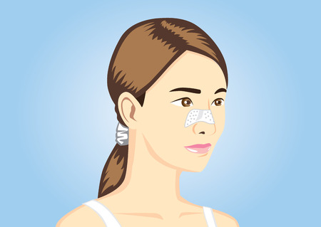 pore: Acne pads on women nose vector version Illustration