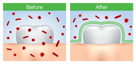 Before and after of bacteria protection around tooth