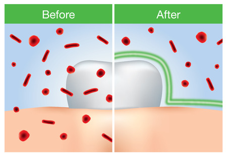 before: Before and after of bacteria protection around tooth