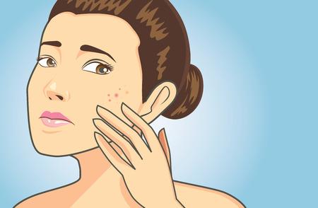 pubertad: Mujeres colar a cara problema de acné en fondo azul tienen espacio de texto Vectores