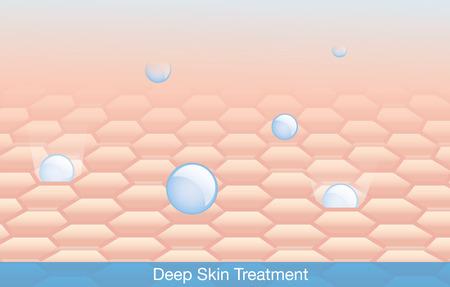 piel: Tratamiento Ingrediente activo profundamente en la piel.