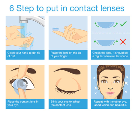 6 step to put in contact lens 版權商用圖片 - 43999116