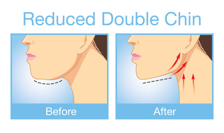 woman close up: Illustration before and after reduce a double chin. Look firming up in after image
