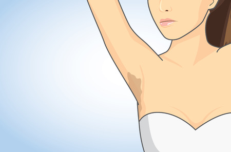 affecting: Woman showing her armpit skin discoloration with the lifting up arm.