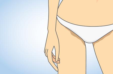 vaginal: Dark skin in around groin are of woman