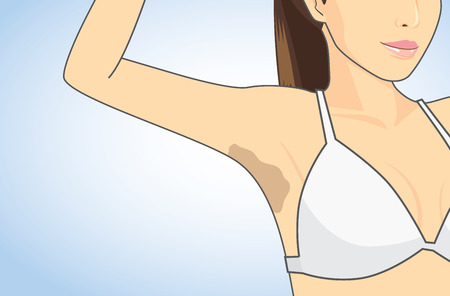 cartoon underwear: Woman showing her armpit skin discoloration with the lifting up arm.