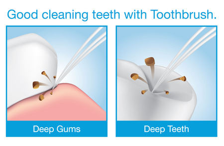 Deep cleaning teeth with toothbrush. Slim bristles cleaning in difficult access area of teeth and gums