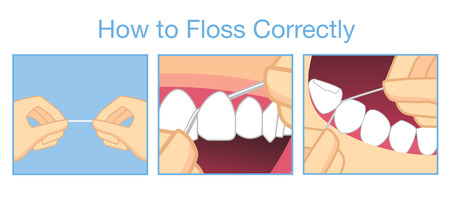 tooth cartoon: How to floss correctly for cleaning teeth