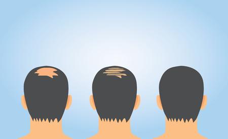 Die Erhöhung des Haarvolumens nach der Haarausfall Behandlung auf kahlen Vektorgrafik