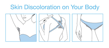 Discoloration of the skin on body part after suntan or outdoor activities