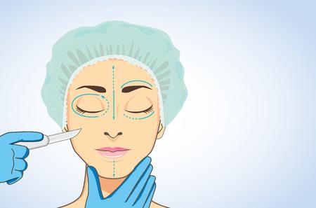 superficie: Mujer con gorras quirúrgicas para dormir durante listo para la cirugía estética. manos esteticista holding hoja de bisturí quirúrgico listo para la cirugía en su cara marcada. Vectores
