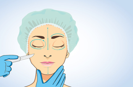 Woman wearing surgical caps sleeping for ready to cosmetic surgery. beautician hands holding surgical scalpel blade ready for surgery on her face marked. Ilustracja