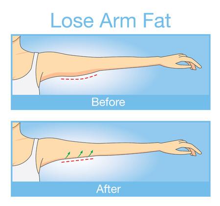Ilustración sobre el paso antes y después del brazo de la mujer mirada endurecimiento después de perder la grasa del brazo