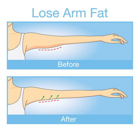 gordos: Ilustración sobre el paso antes y después del brazo de la mujer mirada endurecimiento después de perder la grasa del brazo