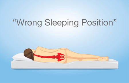nude back: Red spine of woman sleeping on the side position on white mattress. This illustration meaning to danger from wrong sleeping position