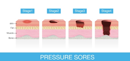 Stages of Pressure Sores of patient skin which extends from skin into muscles and bone. This is medical illustration.
