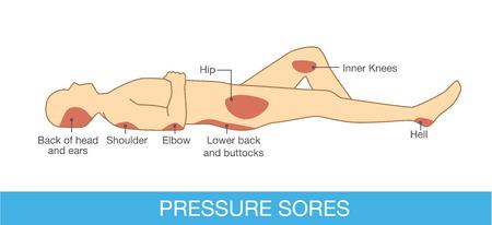 人間の体の部分に圧力傷領域。