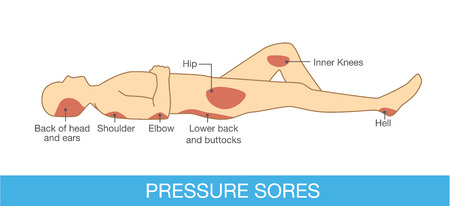 back view: Pressure sores area on human body part.