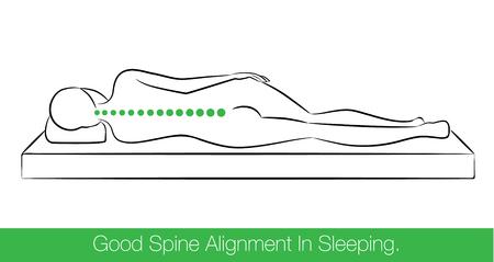 medico caricatura: La alineación de la columna correcta al dormir por la posición de dormir de costado.