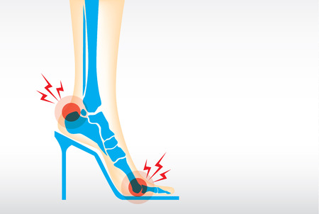 high heels woman: Symptom pain on foot because wearing high heels make heel bone damage and muscles.