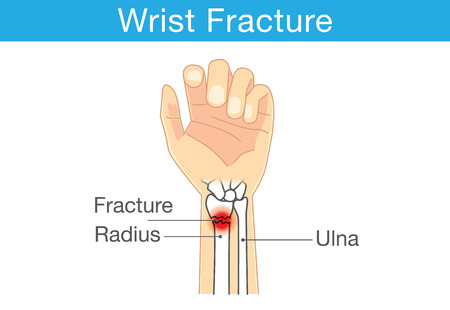 Diagram of wrist have bone fracture