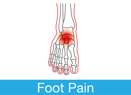 Outline of foot and bone which have pain on top of foot. This is medical illustration.