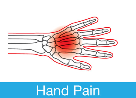 body damage: Outline of hand and bone which have pain on wrist. This is medical illustration