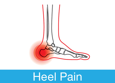 skin injury: Outline of foot and bone which have pain on heel. This is medical illustration.