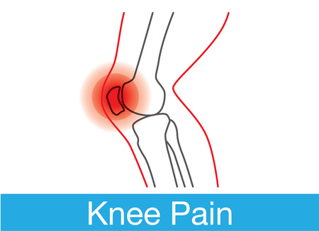 redness: Outline of knee and bone which have pain. This is medical illustration Illustration